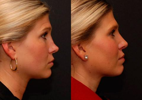 Rhinoplasty - cosmetic surgery expense