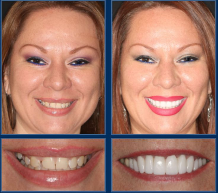 total smile makeover -most expensive cosmetic surgery